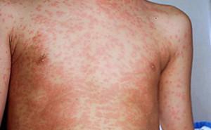 Measles.
